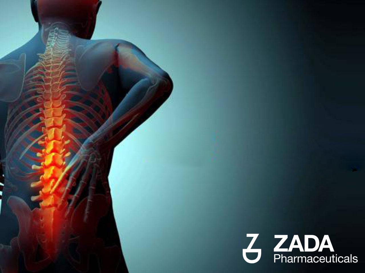 Osteoporoza: uzroci, simptomi, liječenje i prevencija